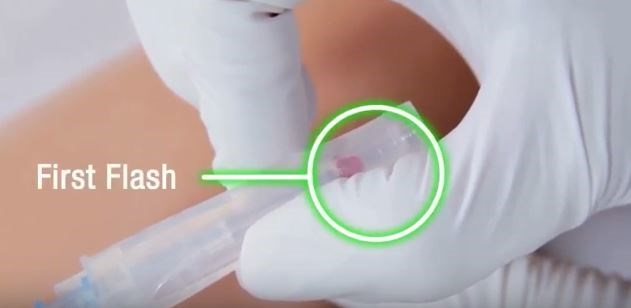 SurFlash Plus Safety I V  Catheter with Blood Control Valve